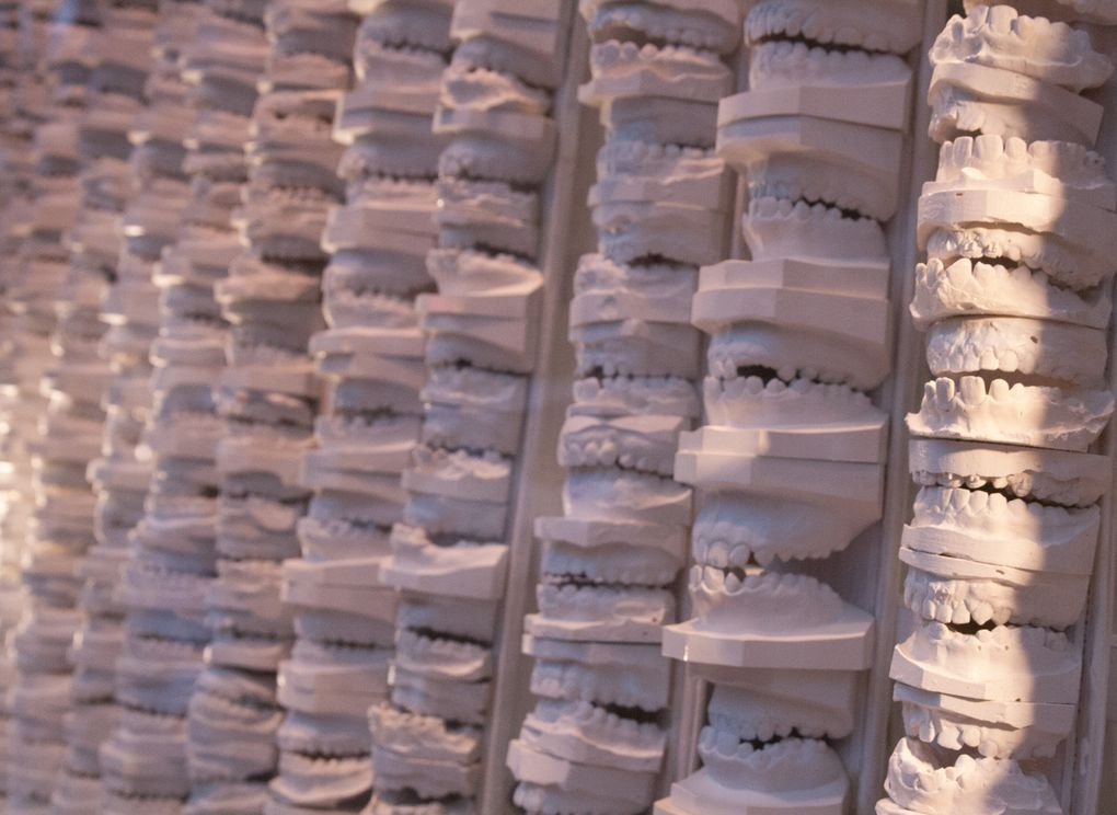 Moules dentaires  - photos de bouches -textes