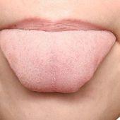 Les marques sur la langue : ce qu'elles signifient