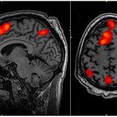 """""""Lucy"""" de Luc Besson: Le mythe du cerveau utilisé à 10% a la vie dure"""