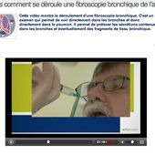 Video fibroscopie bronchique de l'adulte