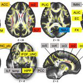 White Matter Integrity Declined Over 6-Months, but Dance Intervention Improved Integrity of the Fornix of Older Adults