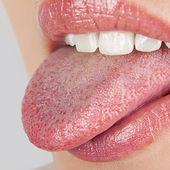 Ce que votre langue révèle sur votre santé