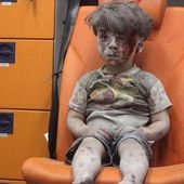 This picture of a wounded Syrian boy captures just a fragment of the horrors of Aleppo