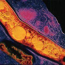Une vidéo pour comprendre le fonctionnement de bactéries pathogènes