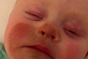 PHOTOS. Ce bébé, allaité par sa mère qui avait mis de l'autobronzant, se retrouve avec le visage orange