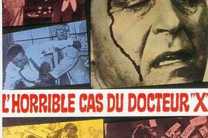 L'HORRIBLE CAS DU DOCTEUR X (The man with the X-Ray eyes)