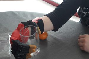 Des collégiens de 5e créent une main en 3D pour un adolescent