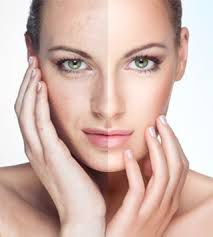Skin Rejuvenation in Adelaide for the Best Results