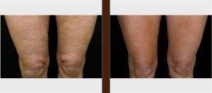 Best Results from the Advanced Cellulite Treatment in Adelaide
