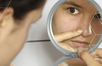 Enhance Your Confidence By Eliminating Blemishes With The Help Of These Tips!