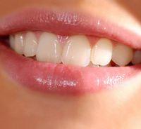 Décodage dentaire : noms symboliques des dents
