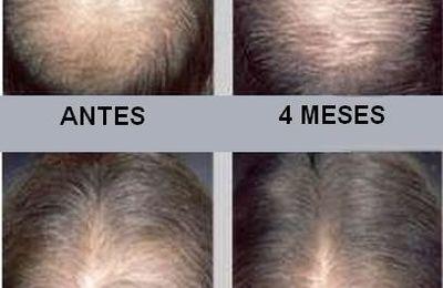 Minoxidil, eficaz contra la alopecia androgénica