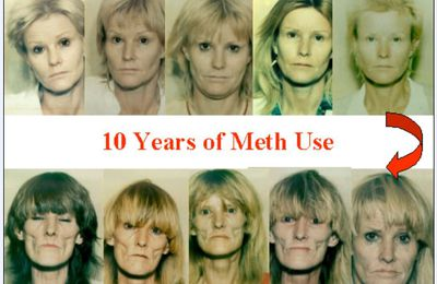 10 ans d'utilisation de meth - 10 years of meth use