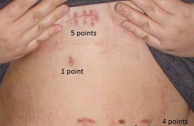 Voici les cicatrices !