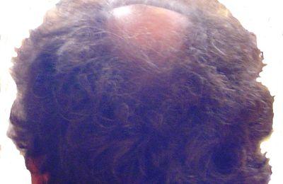 d6f5bf182af Des pellicules dans vos cheveux   - Le blog de bio-bien-belle.over ...