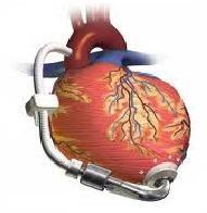 Padova: primo impianto mini-invasivo di pompa cardiaca