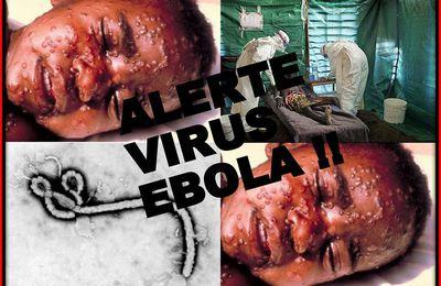 """Ebola : Une """"solution"""" catastrophe ! - Le sérum qui guérit Ebola existe"""