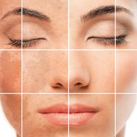 Pigmentation Treatment in Adelaide from the Best Laser Clinic