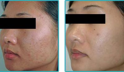 Making an Informed Decision on Acne Scar Treatment in Adelaide