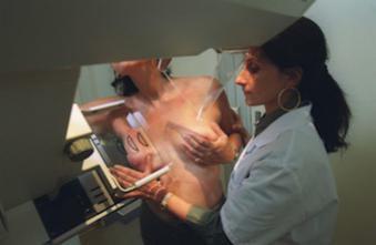 Cancer du sein : quels sont les risques de la nouvelle mutation génétique ?