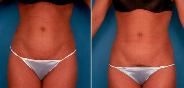 How to have a smooth recovery time after your tummy tuck