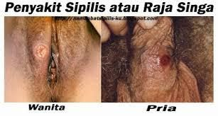 Obat Sipilis Di Apotik Kota Pangkal Pinang