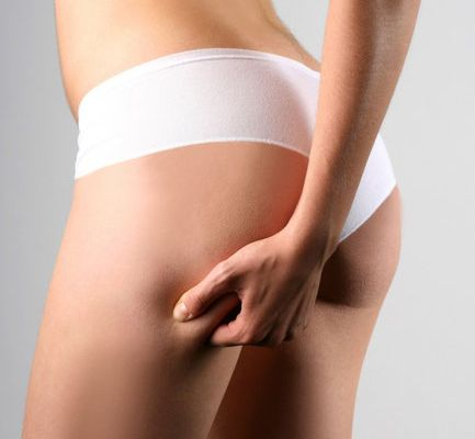 La cellulite, les stockages de la graisse, la rétention d'eau, la culotte de cheval ...