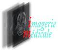 imagerie.medicale.over-blog.com