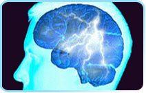 Les céphalées pas migraine…