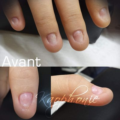Reconstruction d'ongles (formation)