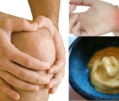 Crème maison contre les articulations douloureuses: Aide de suite après sa première utilisation!