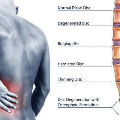 Are You Conscious About Slipped Disc Issue?