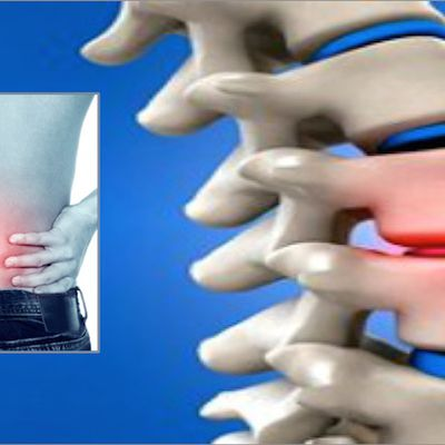 Obtain The Possible Therapy of Slipped Disc
