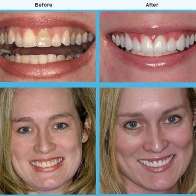 How To Obtain Specialist Cosmetic Dentistry at Sensible Rate