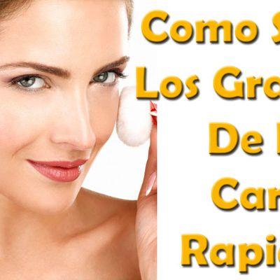 Remedios caseros para eliminar los granitos de la cara