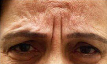 Arides regards