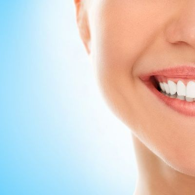 Your Perfect Smile: Professional Teeth Whitening Vs. Over-The-Counter Kits