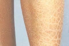 Remedio para la piel seca de las piernas