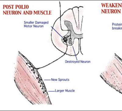 AUTOPSY OF A POLIO SURVIVOR WITH MUSCLE WEAKNESS