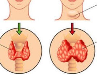 Hypo ou hyperthyroïdie