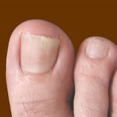 4 Types of Toenail Fungus