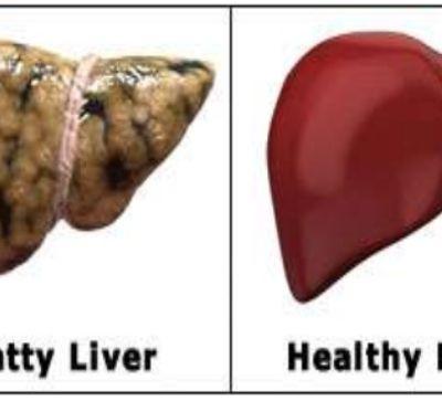 Children's Liver disease