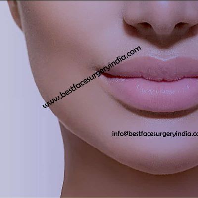 Lip Reduction – Do you have large lips?