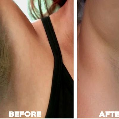 How to remove dark underarms