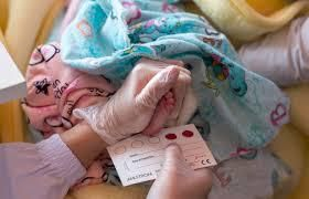 Early Infant Diagnosis of HIV
