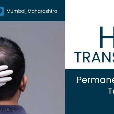 Hair Transplant – Can it offer a permanent solution to hair loss?